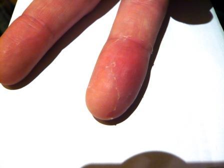 der Finger ist schmerzfrei und voll beweglich